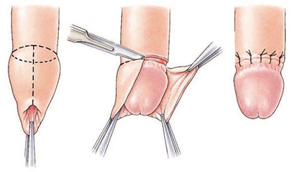 Obřízka penisu – ukázka z chirurgického zákroku
