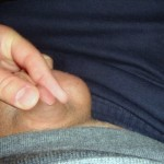 Mikropenis u muže