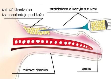 chirurgicke zvetseni penisu