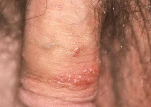 HPV_papilloma_virus